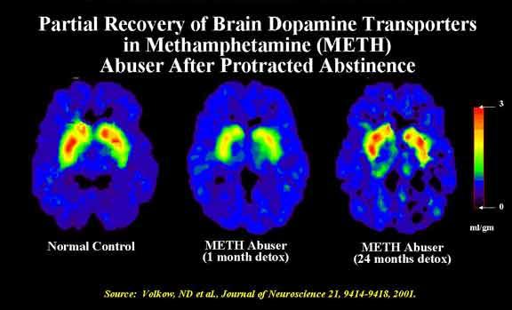 drugs affect on brain