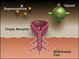 opioid receptors not occupied  - withdrawal